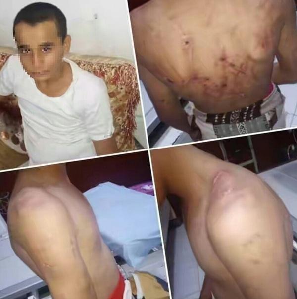 أب يمني يجلد إبنه بقضبان حديدية بعد تقييده !