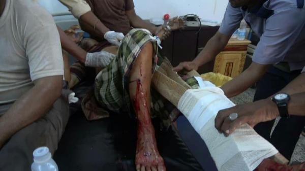 قصف مدفعي على مصانع اخوان ثابت بالحديدة يسفر عن سقوط 7 عمال
