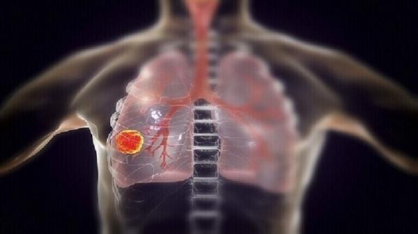 الكشف عن عضو أساسي يتلفه فيروس كورونا بعد مهاجمة الرئتين!