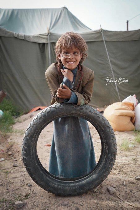 عاجل: من هو الفائز بالحصول على نظارة الطفل النازح محمد بمبلغ 2 مليون ونصف؟
