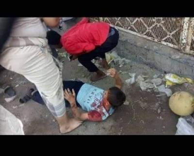 أكثر من 20 مدنياً قتيلا وجريحا بقصف حوثي في مدينة الحديدة