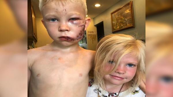 طفل يتصدى لكلب شرس دفاعا عن شقيقته وهذا ما حدث له !