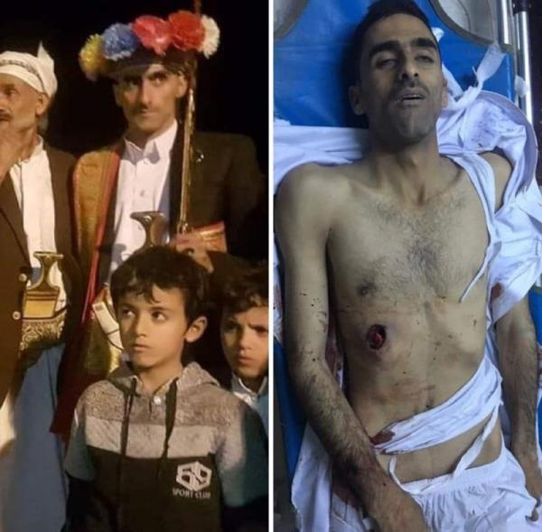 تفاصيل الاشتباكات التي وقعت بصنعاء بين احدى قبائل طوق صنعاء (همدان) والحوثيين وسقوط قتلى وجرحى